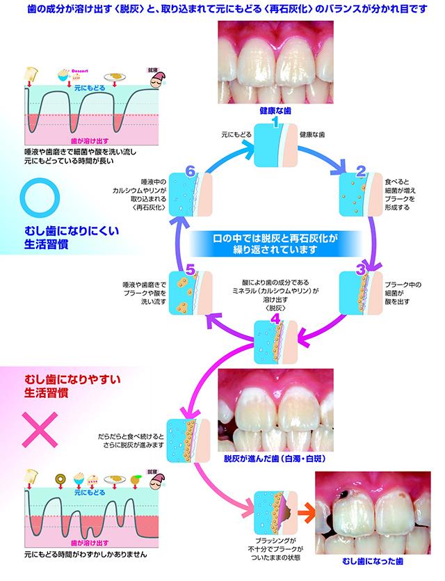 歯の成分が溶け出す<脱灰>と、取り込まれて元にもどる<再石灰化>のバランスが分かれ目です