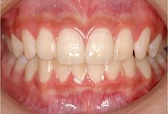 歯磨き状態の確認1