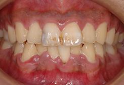 初期の歯周病の場合3