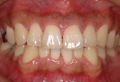 初期の歯周病の場合4